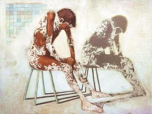vitiligo%20Victor%20Zubeldia[1]